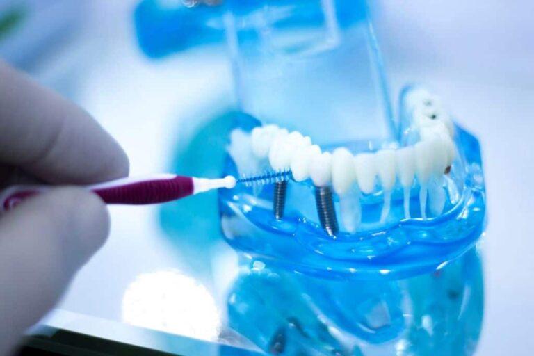Имплантация: особенности этого метода восстановления зубов